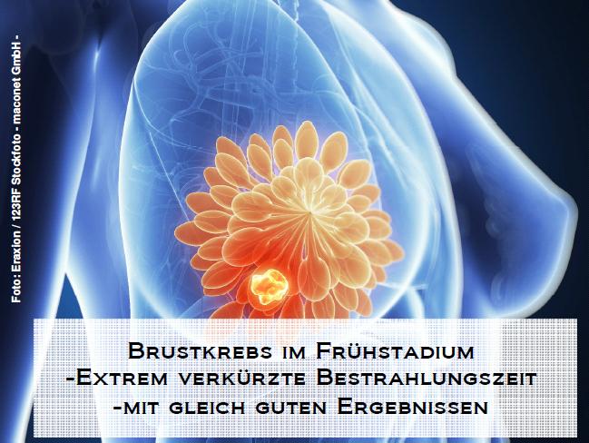 Brustkrebs im Frühstadium