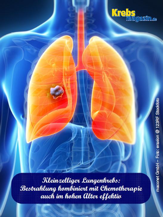 DEGRO_Kleinzelliger Lungenkrebs - Komb RadioChemo auch bei älteren Patenten