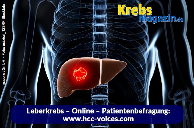 Leberkrebs_Online_Patientenbefragung