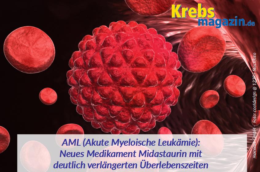 AML Neues Medikament Midastaurin mit deutlich verlängerten Überlebenszahlen